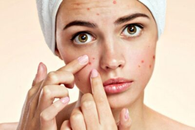 4 cách trị mụn bằng tinh dầu bưởi giảm tiết nhờn làm sáng da mặt