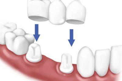 Răng sứ titan có tốt không, giá bao nhiêu, sử dụng được bao lâu