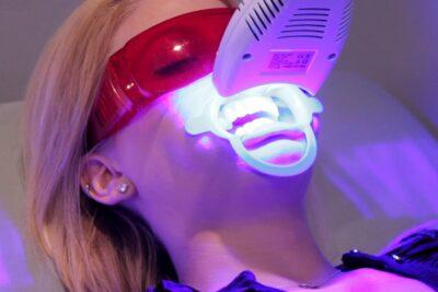 Top 9 công nghệ tẩy trắng răng mới nhất hiệu quả giảm đau ê buốt