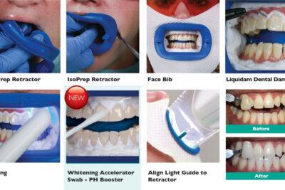 Tẩy trắng răng Laser Whitening là gì, có tốt không, giá bao nhiêu