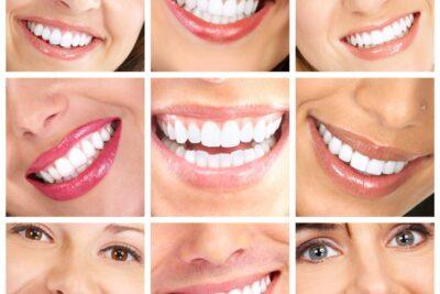 Top 10 địa chỉ nha khoa tẩy trắng răng tốt nhất TPHCM kèm bảng giá
