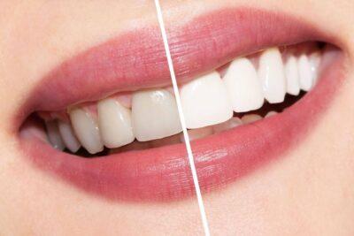 Tẩy trắng răng được bao lâu thì trắng và hết đau, chọn nha khoa nào