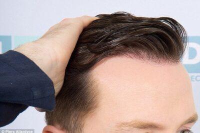 17 cách điều trị bệnh rụng tóc ở nam giới an toàn hiệu quả 100%