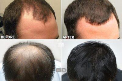 Hói đầu có chữa được không? 5 cách giảm rụng tóc khoa học an toàn