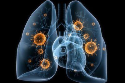 Bệnh ung thư phổi có lây không? 8 con đường lây nhiễm nguy hiểm nhất