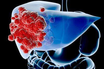 Ung thư gan giai đoạn 3 có chữa được không? 5 cách điều trị tốt nhất