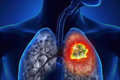 17 bệnh viện chữa ung thư phổi tốt nhất ở HN, HCM có bác sĩ giỏi