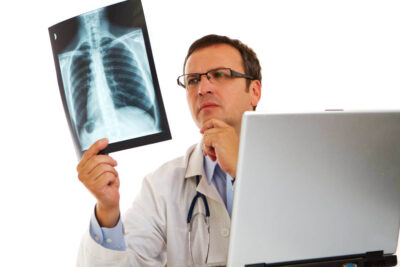 Ung thư phổi giai đoạn 2 có chữa được không và phác đồ điều trị