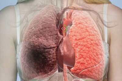 Ung thư phổi giai đoạn cuối có chữa được không và phác đồ điều trị