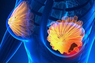 Ung thư vú có chữa được không, chi phí bao nhiêu, phác đồ điều trị hiện nay