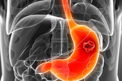 Ung thư dạ dày có chữa được không? Phác đồ điều trị các giai đoạn