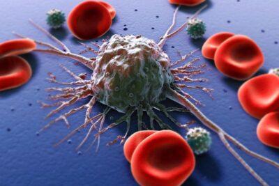 Ung thư máu giai đoạn đầu có chữa được không? Phác đồ điều trị bệnh