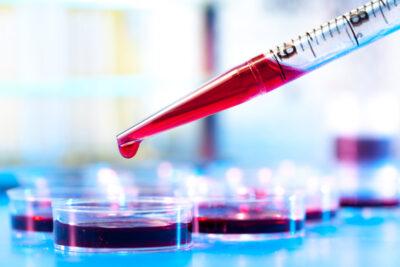 Ung thư máu giai đoạn 3 là gì, dấu hiệu, thời gian sống, cách chữa