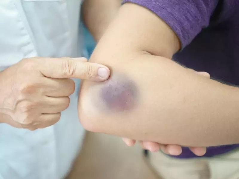 Những vết bầm tím không rõ nguyên nhân là dấu hiệu của bệnh ung thư máu