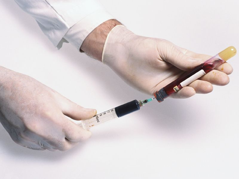 Bệnh nhân được yêu cầu xét nghiệm máu, dịch tủy xương, dịch tủy sống (nguồn: healthday.com)