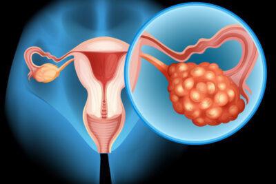 7 nguyên nhân bệnh ung thư buồng trứng cần đề phòng cảnh giác