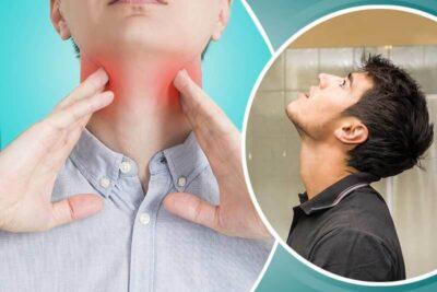 Viêm họng liên cầu khuẩn là gì, triệu chứng, nguyên nhân, cách chữa