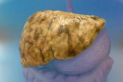 Bệnh gan nhiễm mỡ cấp độ 1 2 3 có nguy hiểm không, chữa thế nào