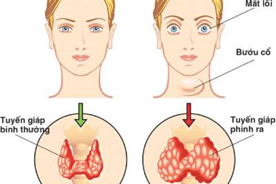 Bệnh cường giáp có thai được không, có ảnh hưởng đến sinh sản không
