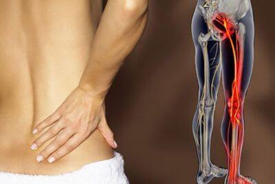 Bài thuốc nam chữa đau thần kinh tọa hiệu quả giảm đau nhức mỏi