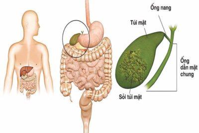 Bệnh sỏi mật kiêng ăn gì, kiêng gì giảm đau hỗ trợ điều trị hiệu quả