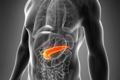 Cách chẩn đoán, điều trị viêm tuỵ cấp tránh biến chứng nguy hiểm