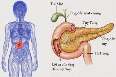 Bệnh viêm tụy nên ăn gì, kiêng gì, chọn loại hoa quả nào tốt nhất