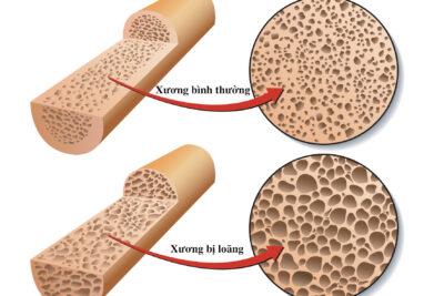 Bệnh loãng xương là gì, có nguy hiểm không, triệu chứng, cách điều trị