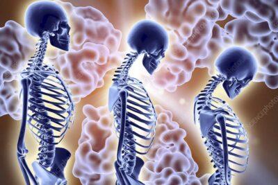 Khám đo loãng xương gồm những gì, cách đo thế nào, chi phí bao nhiêu