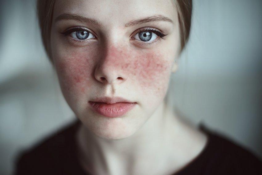 Lupus ban đỏ có thể ảnh hưởng nguy hiểm tới phụ nữ trong quá trình mang thai