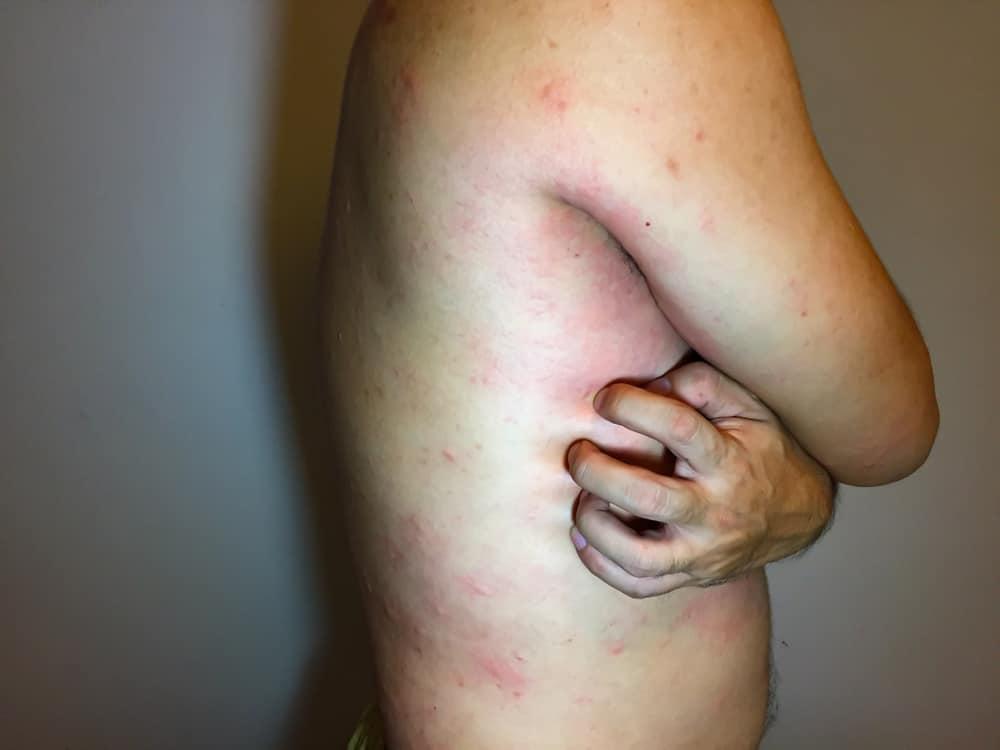 Tùy từng trường hợp cụ thể bác sĩ sẽ đưa ra cách điều trị bệnh Lupus ban đỏ hiệu quả nhất