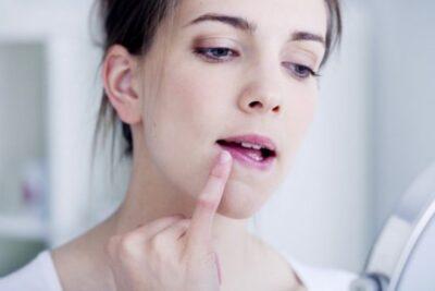 Thường xuyên bị nhiệt miệng có sao không? Cách chữa trị và phòng bệnh