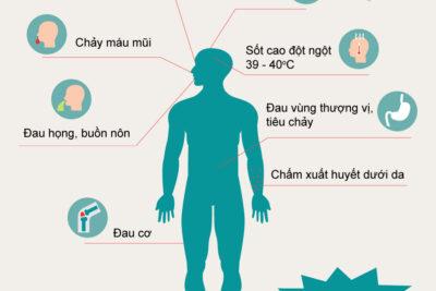 Sốt xuất huyết là gì, dấu hiệu, nguyên nhân, biến chứng, điều trị