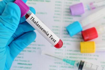Xét nghiệm gen Thalassemia là gì, quy trình, chi phí, ở đâu tốt nhất