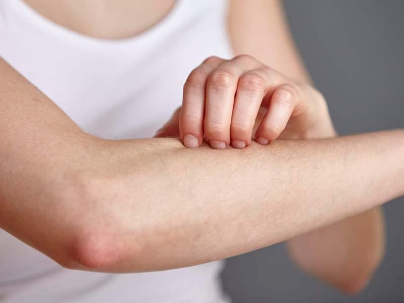 Có rất nhiều nguyên nhân gây ra căn bệnh rôm sảy ở người lớn