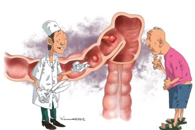 Bệnh Polyp đại tràng nguy hiểm không, nguyên nhân, dấu hiệu, cách chữa