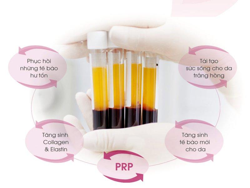 Plasma có màu vàng nhạt và dễ thay đổi tùy theo sinh lý cơ thể