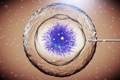 7 biến chứng từ cấy ghép tế bào gốc nguy hiểm nhất cần cẩn trọng