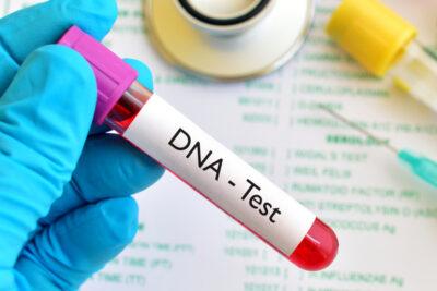 6 nguồn thu nhận ADN tốt nhất trên cơ thể giúp chẩn đoán bệnh hiệu quả