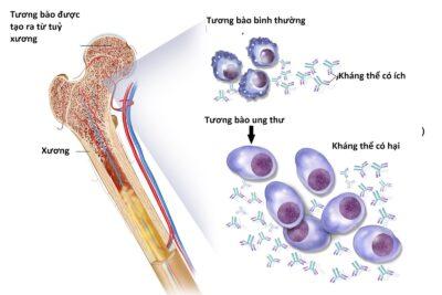 Review cách điều trị đa u tủy xương bằng tế bào gốc có hiệu quả không