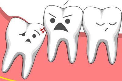 Khi nào nên nhổ răng khôn, triệu chứng dấu hiệu và lưu ý trước khi nhổ