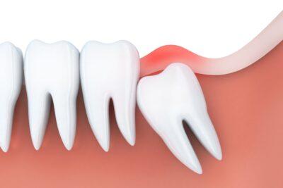 5 lưu ý khi nhổ răng khôn trước và sau nhanh lành khỏi đau đớn