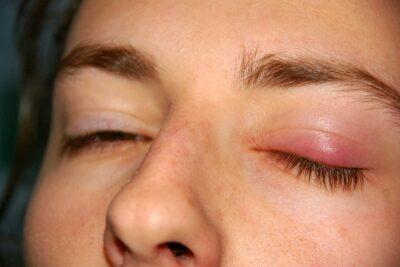 Viêm bờ mi mắt là gì, phân loại, dấu hiệu, nguyên nhân, cách chữa