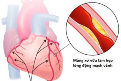 Bệnh mạch vành có nguy hiểm không, nguyên nhân, cách điều trị hiệu quả