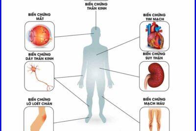 Biến chứng mắt của bệnh tiểu đường có nguy hiểm không, cách phòng ngừa