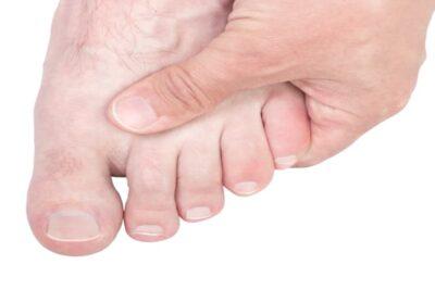 Biến chứng bàn chân của bệnh tiểu đường là gì, nguyên nhân, phòng tránh