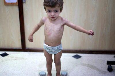 Trẻ em có bị tiểu đường không, nguyên nhân, dấu hiệu, cách phòng tránh