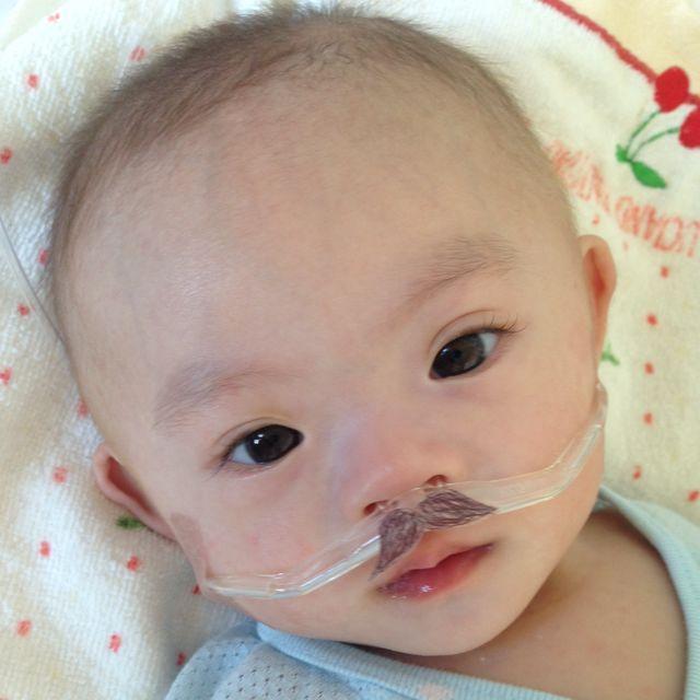 Khi trẻ mắc phải Patau có nhiều biến chứng giống với hội chứng Down.