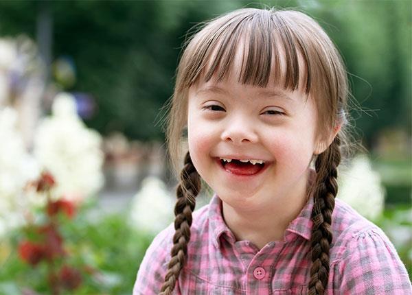 Trẻ bị Down có đặc điểm hình thái đặc trưng