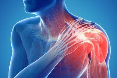Hội chứng đau cổ vai gáy là gì, nguyên nhân, dấu hiệu, cách điều trị